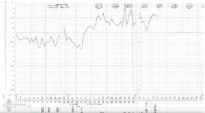 妊娠したときの基礎体温表